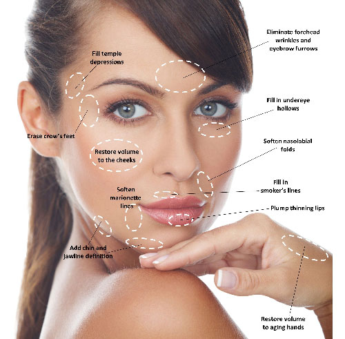 dermal-filler-treatment-areas-sm