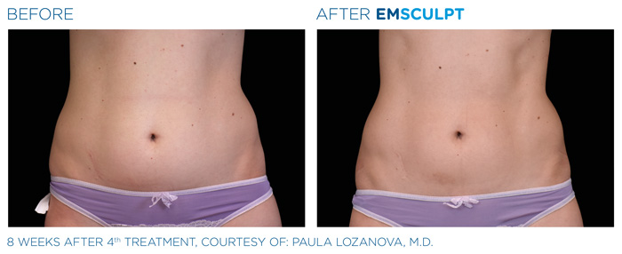 Emsculpt_PIC_Ba-card-female-abdomen