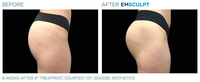 Emsculpt_PIC_Ba-card-female-buttock